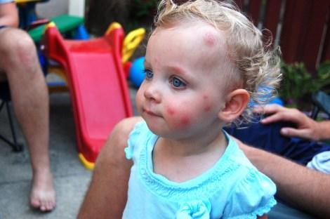 Alergia infantil a picada de insetos.